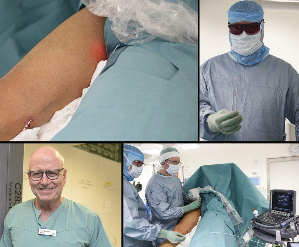 """Kirurg Lars Knutson er nå i gang med laseroperasjoner med laser ved UNN i Narvik. Bildet oppe til venstre viser hvordan laseren er ført opp i et kateter fra kneet mot lysken, og lyser opp der selve """"brenningen"""" skal gjennomføres. Laseren som benyttes er glødende het (oppe til høyre), og for å være sikker på at operasjonen blir vellykket sørger overlege og radiograf Jan Ole Frantzen for å bidra med hjelp av ultralyd (nede til høyre). Alle foto: Per-Christian Johansen"""